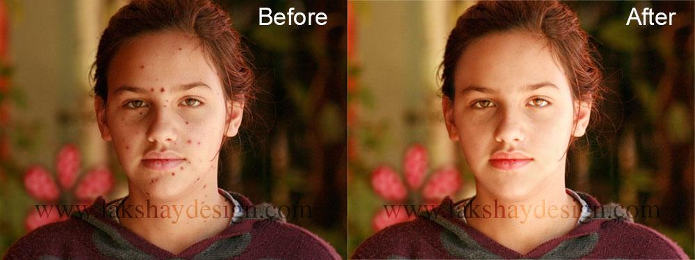 face-retouch